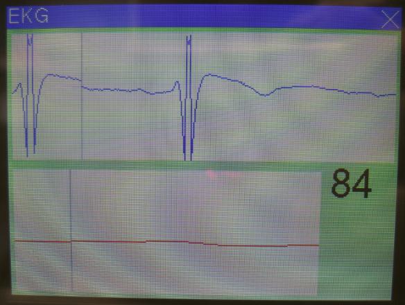 ECG Display